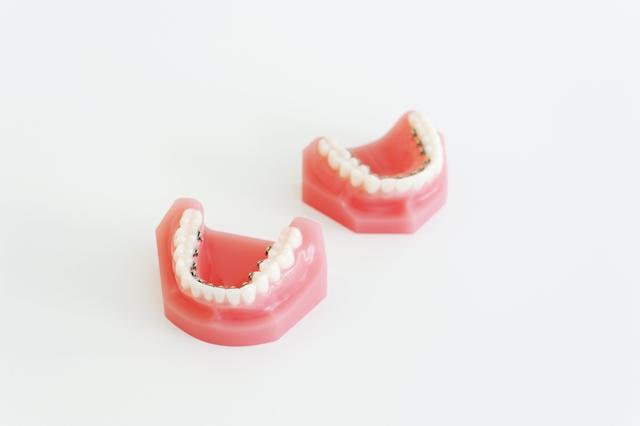 見えない舌側矯正装置